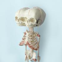 83SELECT / Double Head Baby Skull Model  ダブルヘッドスケルトン骨格標本