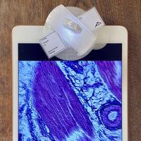 モバイルマイクロスコープ ティシュー Tissue ( x 180 ) smm5.0