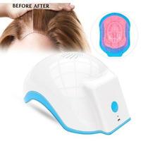 レーザー 治療 育毛 ヘルメット デバイス レーザー 治療 抗毛 損失 促進 育毛 レーザー キャップ マッサージ 機器