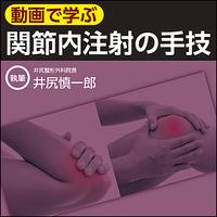 【動画で学ぶ】関節内注射の手技