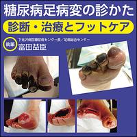 糖尿病足病変の診かた〜診断・治療とフットケア
