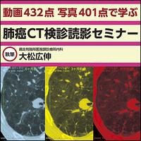 【動画432点 写真401点で学ぶ】肺癌CT検診読影セミナー