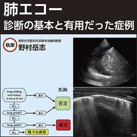肺エコー〜診断の基本と有用だった症例