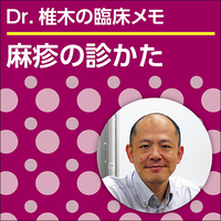 麻疹の診かた~Dr.椎木の臨床メモ