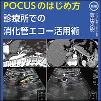 POCUSのはじめ方〜診療所での消化管エコー活用術