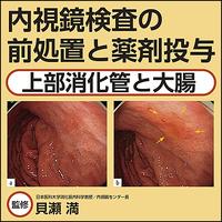 内視鏡検査の前処置と薬剤投与〜上部消化管と大腸