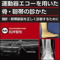 運動器エコーを用いた 骨・靱帯の診かた〜骨折・靭帯断裂を正しく診断するために