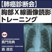 【肺癌診断会】胸部X線画像読影トレーニング