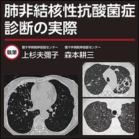 肺非結核性抗酸菌症〜診断の実際
