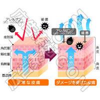 正常な皮膚とダメージを受けた皮膚の比較図