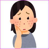 「ニキビ解消化粧品ランキング」化粧品アフィリエイト向け記事作成テンプレ!(SEO/PPC向け)
