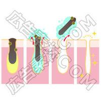 クレンジングで角栓を除去するイメージ図(文言なし)