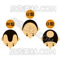 男性向けハゲのタイプ1(形式PNG/サイズ640*480)