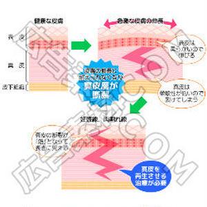 健康肌と肉割れ(妊娠線)の原因のイラスト図