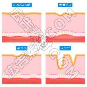 シワのない肌と表情ジワの比較図(青)