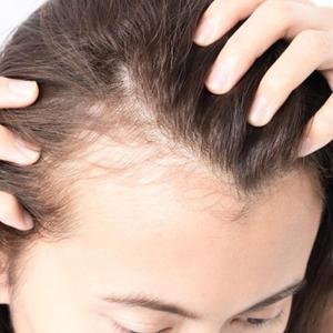 「生活習慣と血行不良と薄毛の関係」記事テンプレート(1300文字)
