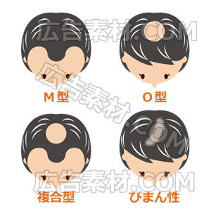 女性の薄毛タイプ「白髪交じり」(形式PNG/サイズ640*640)