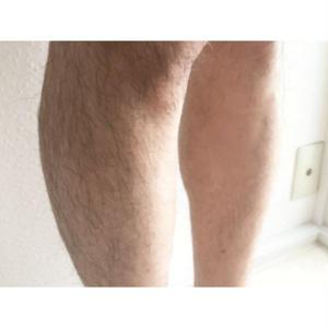 メンズ脱毛アフィリエイト「すね毛を脱毛する方法」記事テンプレート(3200文字)