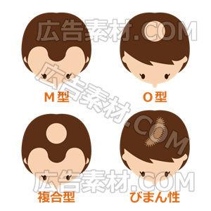 女性の薄毛タイプ「ブラウン」(形式PNG/サイズ640*640)