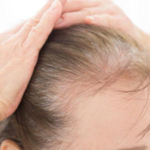 40代以上の女性の薄毛・抜け毛の原因と対策法_記事テンプレート(1600文字)
