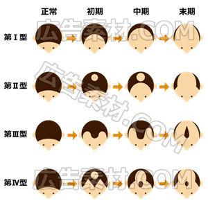 男性向けハゲの種類1(形式PNG/サイズ640*640)