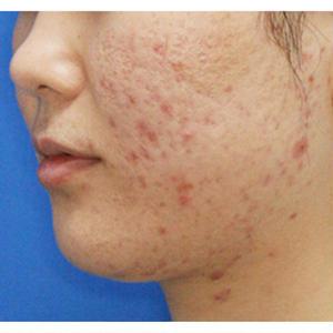 女性向けアフィリエイト「凸凹(クレーター)肌の原因と解消法」記事テンプレート(ペラサイト・ブログ兼用3700文字以上)