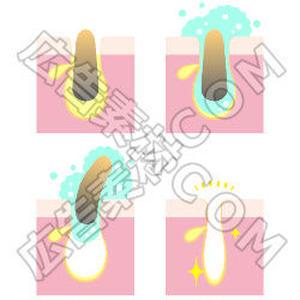クレンジングで角栓を除去するイメージ図(縦)