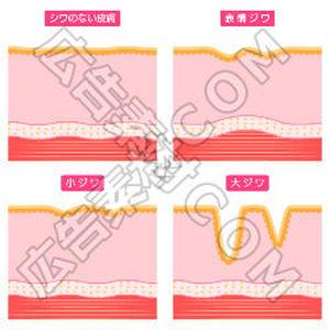 シワのない肌と表情ジワの比較図(赤)