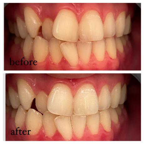 1ヶ月間の集中ホワイトニング♡美歯口  30DAYS   WHITENING  KIT♡
