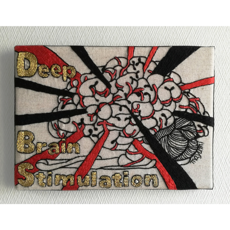 【手刺繍】Deep Brain Stimulation