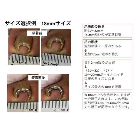 (2個目購入の方限定)ピンセットなし・説明書なし・簡易包装【 ネイル・エイド  16mm 】 巻き爪矯正・巻き爪治療・ブロック・ロボ・ガード・リフト・ワイヤー・クリップ