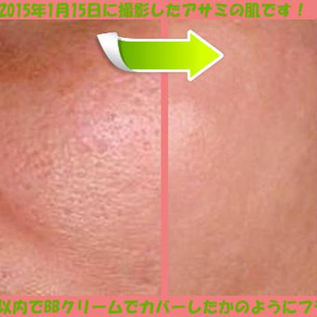あなたの毛穴とクレーター(凸凹肌)は、100%治ります。