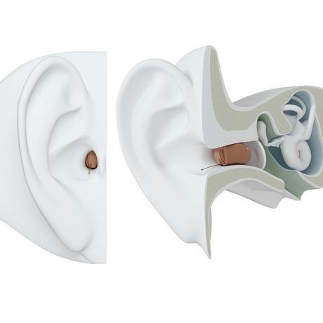【ご自宅試聴】目立たない!オーダーメイド ≪電池式≫ あな型補聴器
