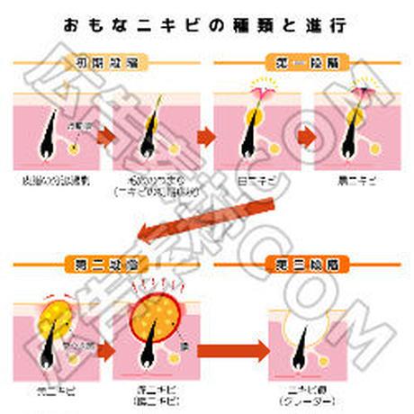 おもなニキビの種類とニキビの進行(オレンジ)