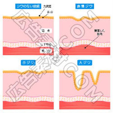 シワのない肌と表情ジワの比較図(青/文言入り)