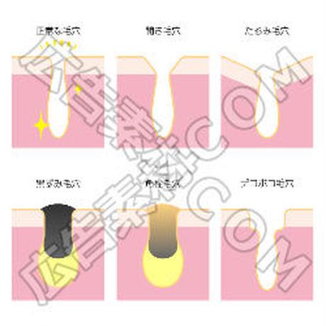 正常の毛穴と汚れた毛穴(黒ずみ)の比較図