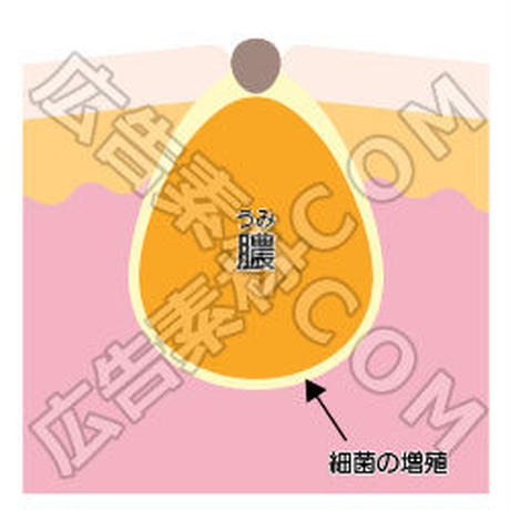 膿(うみ)のイメージ図