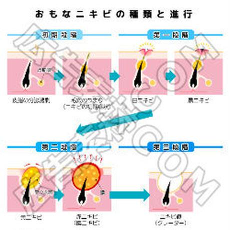 おもなニキビの種類とニキビの進行(青)