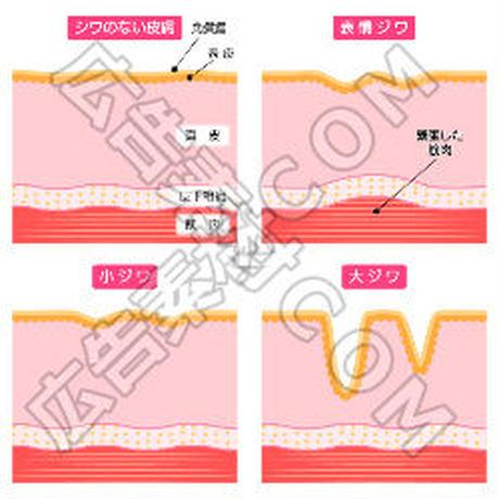 シワのない肌と表情ジワの比較図(赤/文言入り)