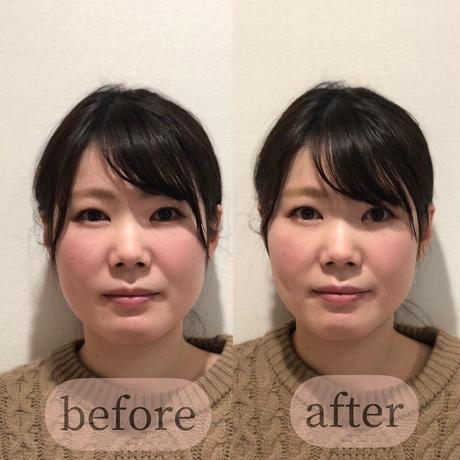 yukino.select 小顔マスク