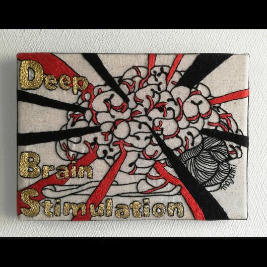 【手刺繍】Deep Brain Stimulation