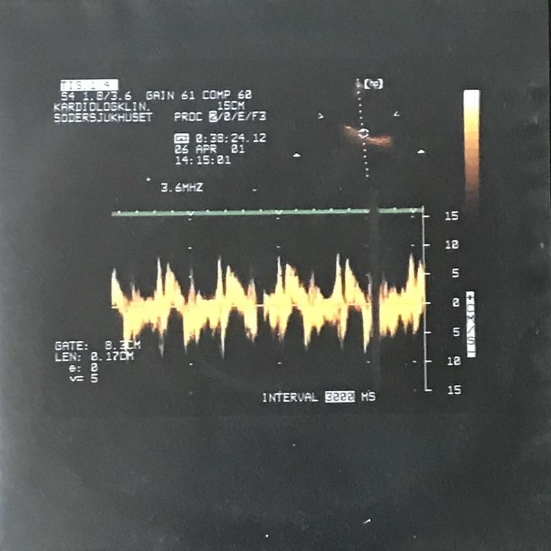 Sten Hanson - My Galloping Heart [EP][Fylkingen Records] ⇨奇妙で愉快な音の奇妙なリズム。