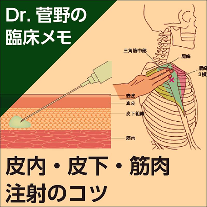 皮内・皮下・筋肉注射のコツ〜Dr.菅野の臨床メモ