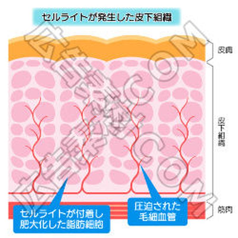 セルライトが発生した皮下組織の断面図
