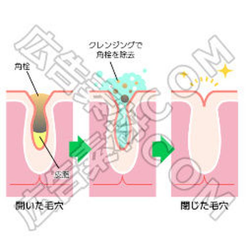 クレンジングで角栓を除去するイメージ図(文言入り)