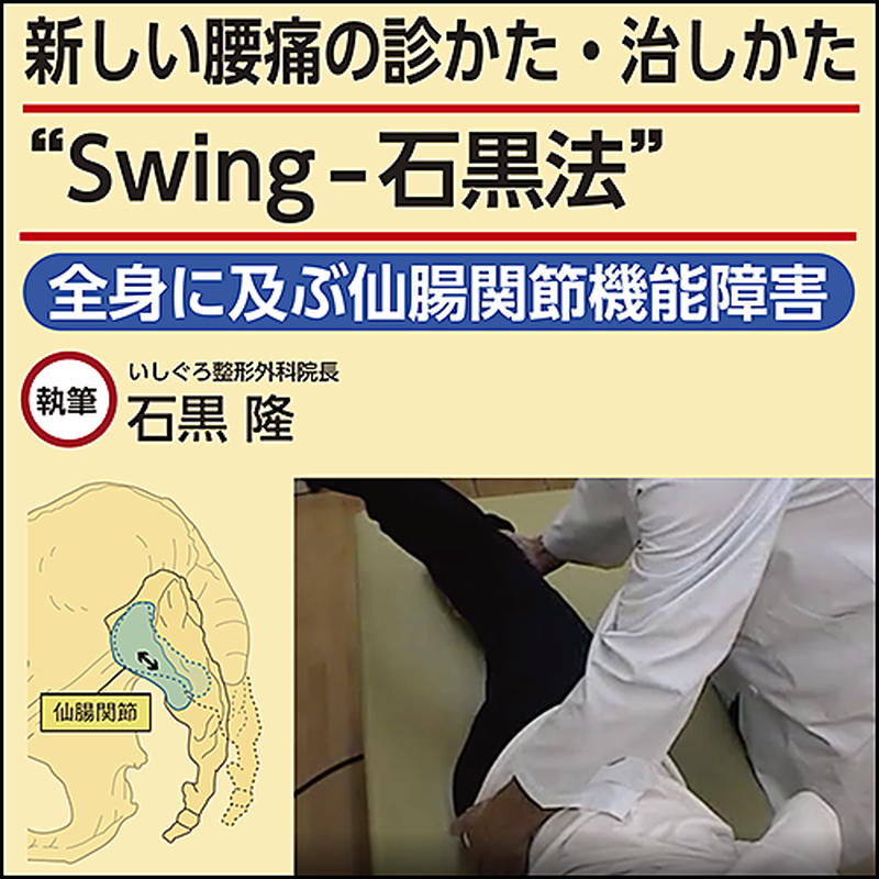 """新しい腰痛の診かた・治しかた""""Swing-石黒法""""〜全身に及ぶ仙腸関節機能 ..."""